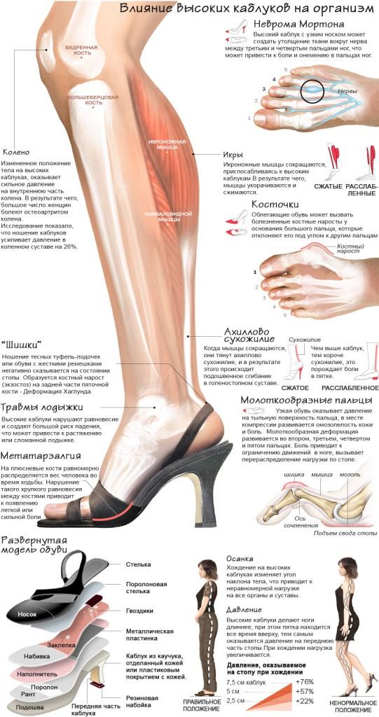 Негативное влияние каблуков на здоровье - инфографика
